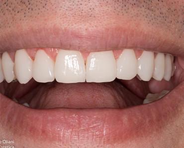 Transformações Dentárias