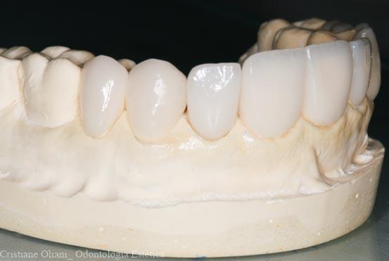 Image result for lentes de contato dental